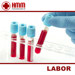 Labor vizsgálatok - Hungária Med-M - Laboráns orvos